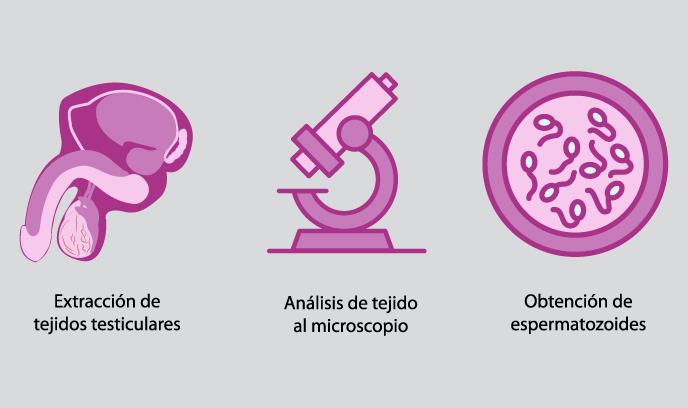 Biopsia Testicular 1