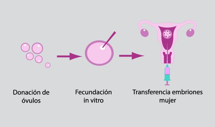 Donación de óvulos. Ovodonación 1