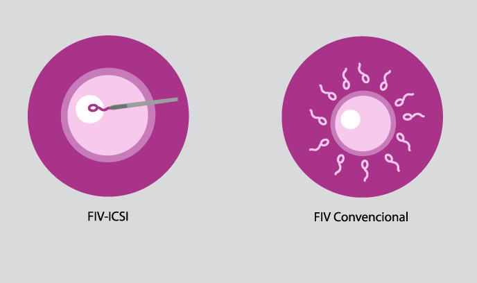 Fecundación In Vitro FIV/ICSI